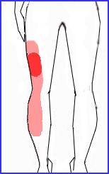 椎間板ヘルニア 図3 70.jpg
